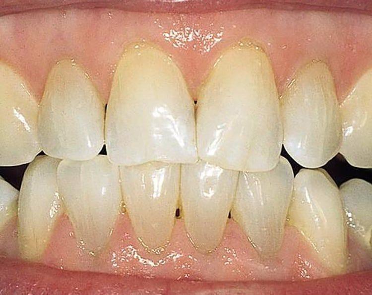 оголенные зубы