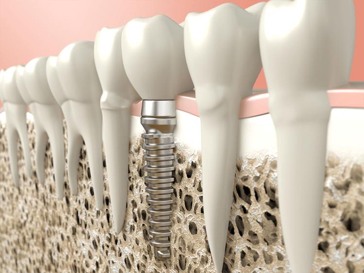 вживление зуба