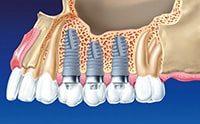 имплантированные зубы