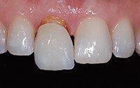 какие коронки лучше ставить на передние и жевательные зубы