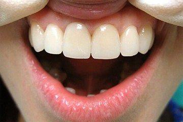 зубы после протезирования