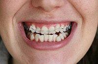 разъехались зубы после снятия брекет систем