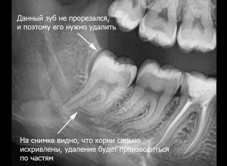 сложный зуб
