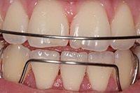 скобы на зубы
