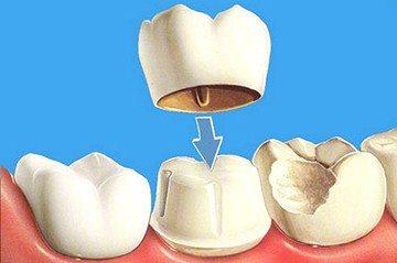 временная коронка на зуб
