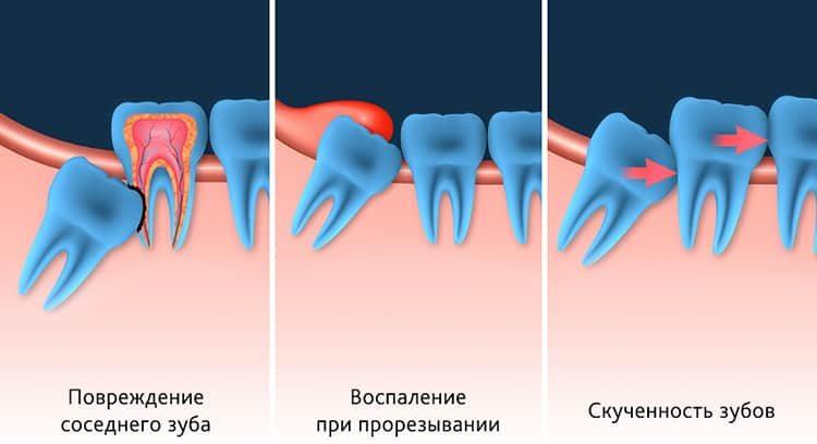 неправильно растущие зубы мудрости