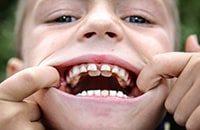 коренные зубы у ребенка