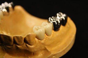 оттиск зубных протезов