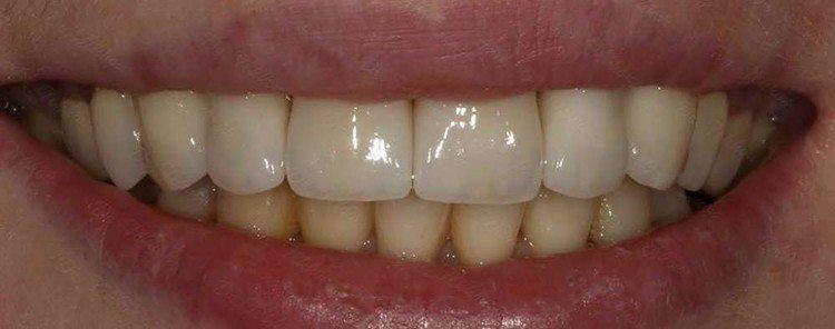изделие из металла и керамики на зубах