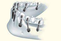 одноэтапный метод имплантации зубов