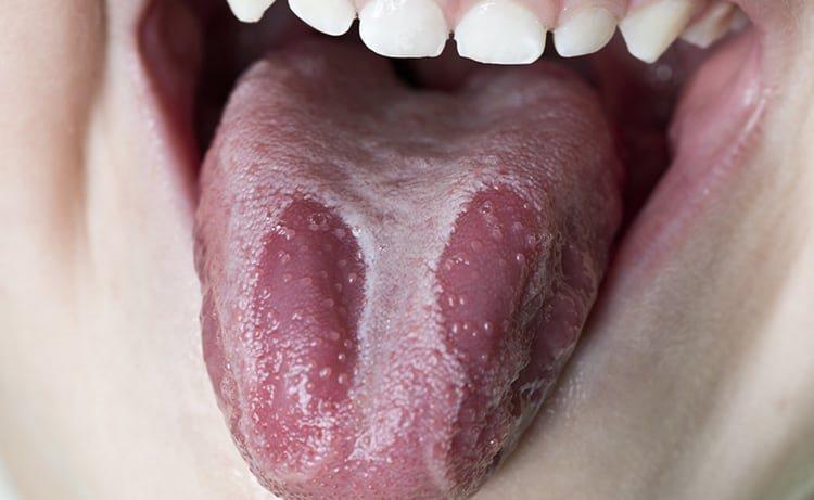 глоссит десквамативного типа