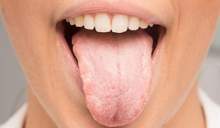бактериальный белый налет на языке