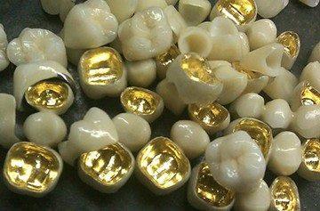 типы металла для производства зубных протезов