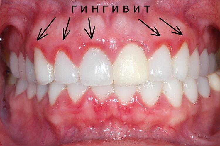 воспаленная полость рта