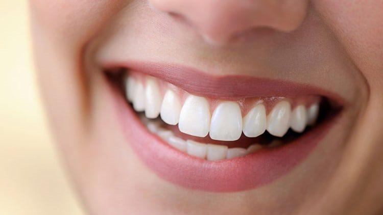 коронки на зубах
