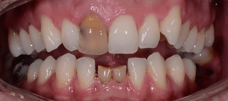 повреждение зуба в результате ушиба