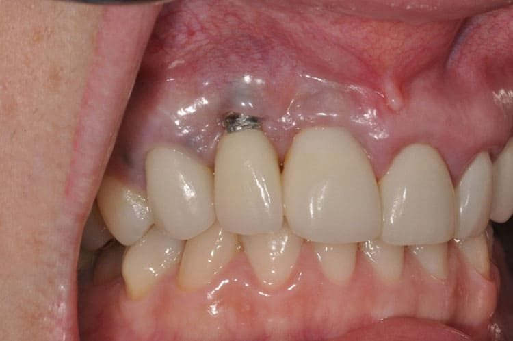 зубной имплант виден
