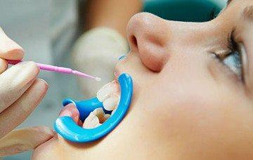выбор метода лечения зубов
