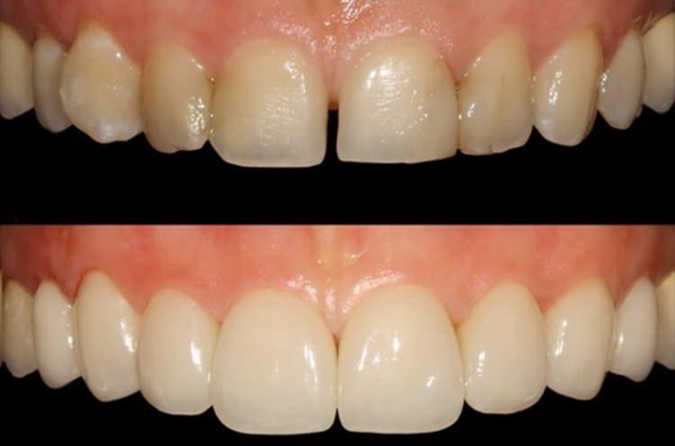 эрозивное поражение зубов