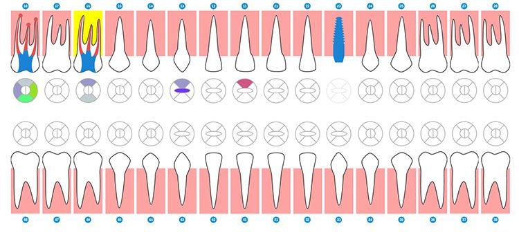 карточка пациента и схема зубов