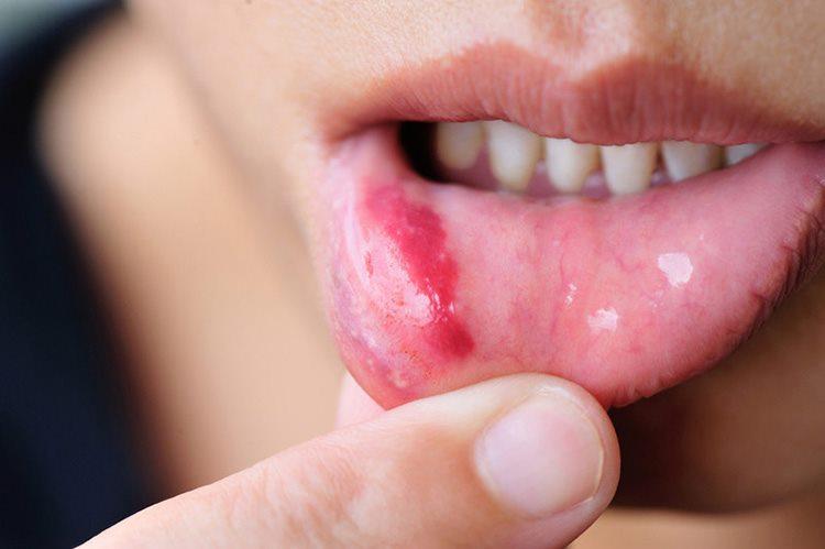 стоматит у взрослых во рту