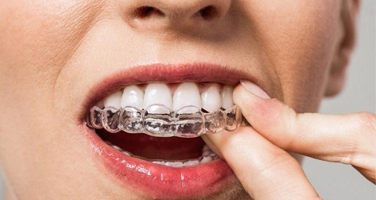 элайнер на зубы
