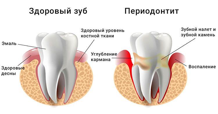 периодонтит зуба