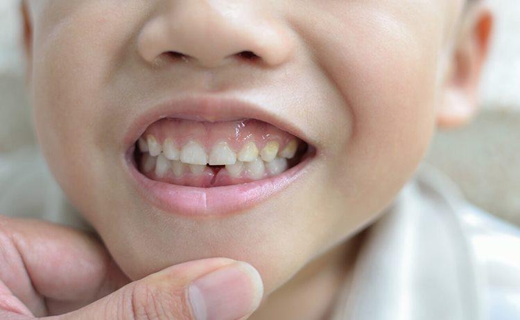 Как уздечка влияет на зубы