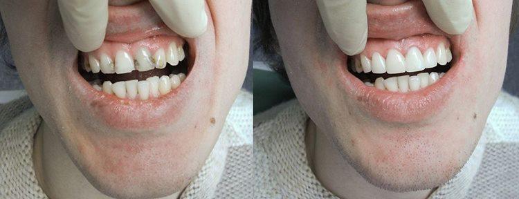 Больно ли лечить передние верхние зубы