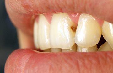 кариес переднего зуба