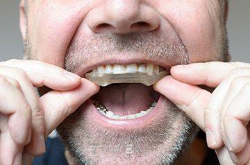 как лечить зубы