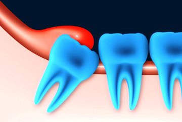 неправильно растущий зуб
