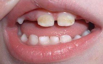 на зубах налет