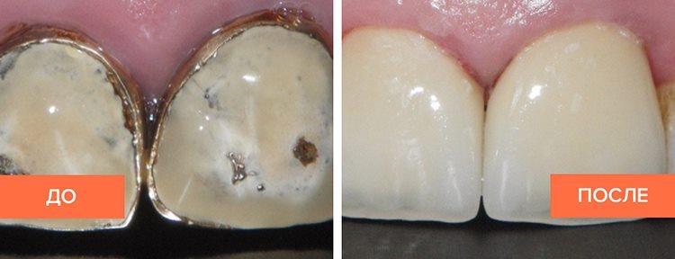 керамика на зубах