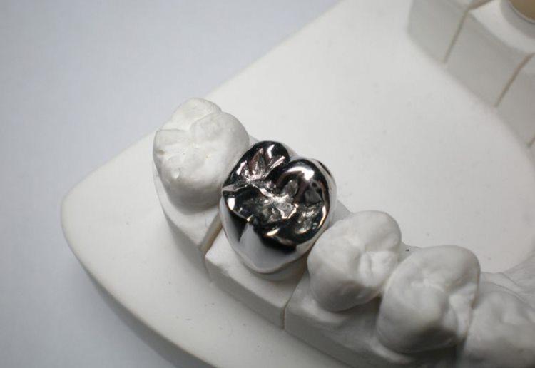 зуб из металла