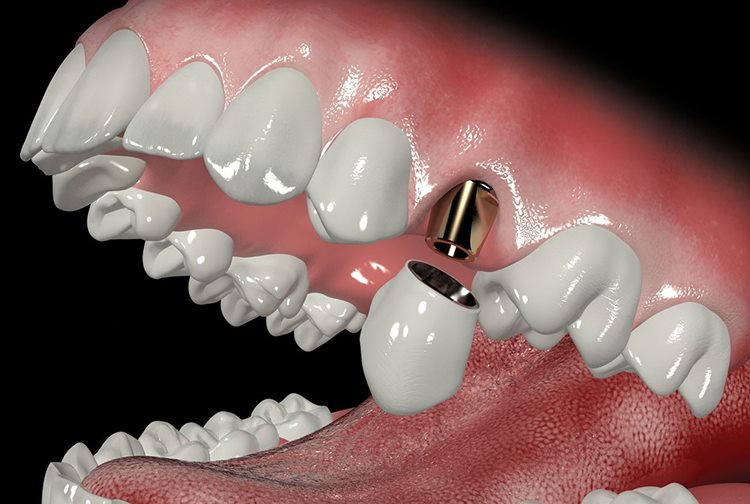 абатмент на зуб