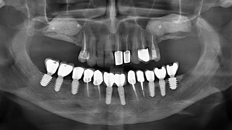 достоинства и недостатки имплантации зубов