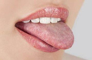 болезни языка