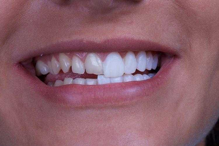 виниры на зубах