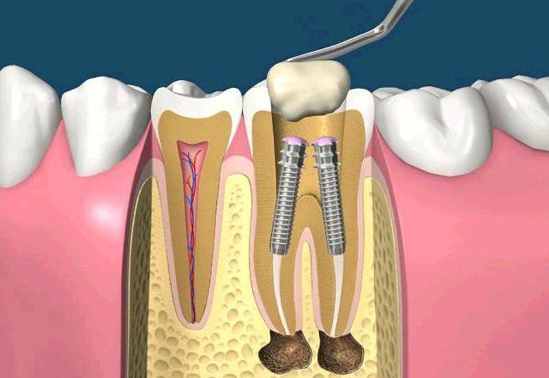 штифт на зуб