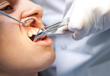 экстракция зуба