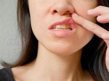 Применение ротокана для полости рта от стоматита thumbnail
